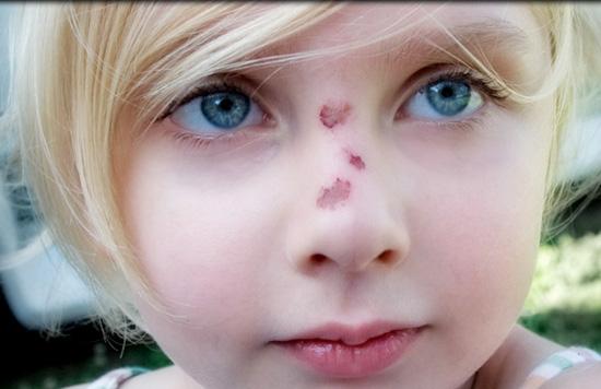 Ожог наружного носа