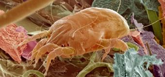 Пищевая (алиментарная) аллергия этиология, патогенез, клиника (симптомы) и лечение