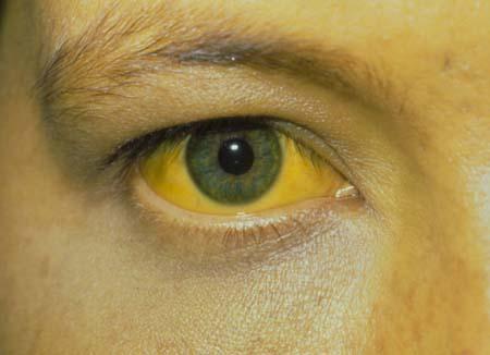 Диагностика (симптомы) хронического вирусного гепатита