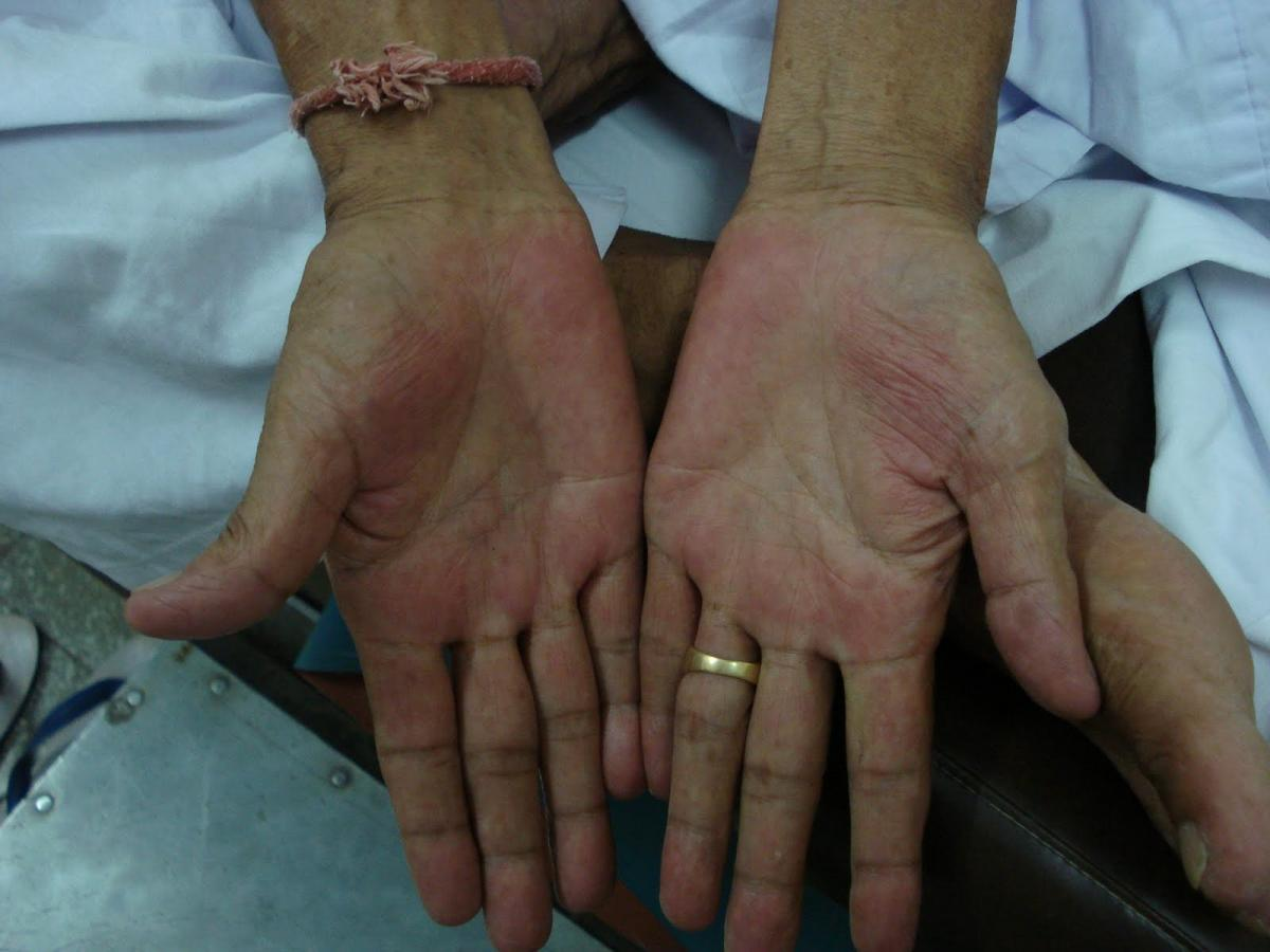 Симптомы цирроза печени. Ладонная эритема