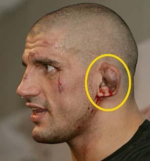 Травматические повреждения уха