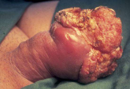 злокачественная опухоль полового члена