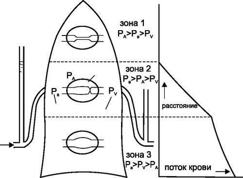 Трехзональная модель распределения легочного кровотока (Ра — давление в легочной артерии, РА — альвеолярное давление, РV — венозное давление