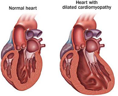 Дилатационная кардиомиопатия - этиология, патогенез, клиническая ...