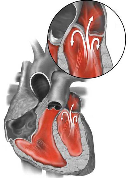 Пмк кардиолог