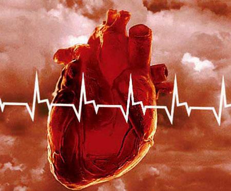 лекарство при инфаркте мозга