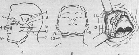 Абсцессы и флегмоны челюстно-лицевой области