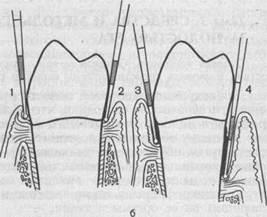Погружение зонда (б) при различных состояниях пародонта (все размеры даны в миллиметрах)