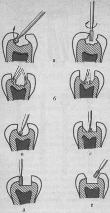 Этапы обработки кариозной полости