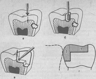 Этапы препарирования кариозной полости II класса