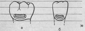 Полости V класса, а — на моляре; б — на резце