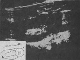 Эхограммы почек - опухоль верхнего сегмента почки