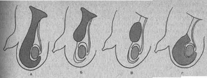 iren-ferrari-erotika