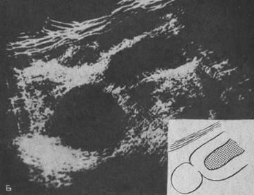Эхограммы почек - киста нижнего сегмента почки (продольный срез)