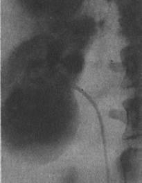 Нефротомограмма. Рак нижнего сегмента правой почки