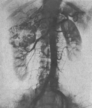 Аортограмма. Патологические сосуды опухолевого узла верхнего сегмента правой почки