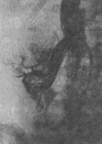 Почечная венограмма. Опухоль верхнего сегмента правой почки
