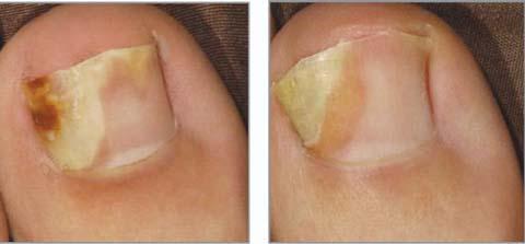 Средство от желтых ногтей грибок