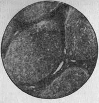 Лечение кисты в левой почке народными средствами