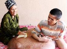 Врачи удалили пациенту из Вьетнама 90-килограммовую опухоль
